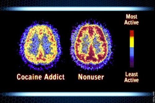 Prevent Drug Abuse